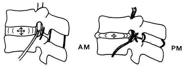 Al acostarte por la noche tu estatura es menor que al levantarte ...