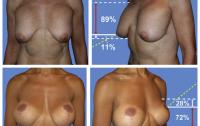 Dibujo20120210 examples of poor postoperative result following breast cosmetics