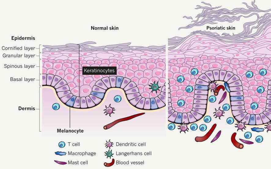 Que se distingue la psoriasis de la mariposa de la ortiga