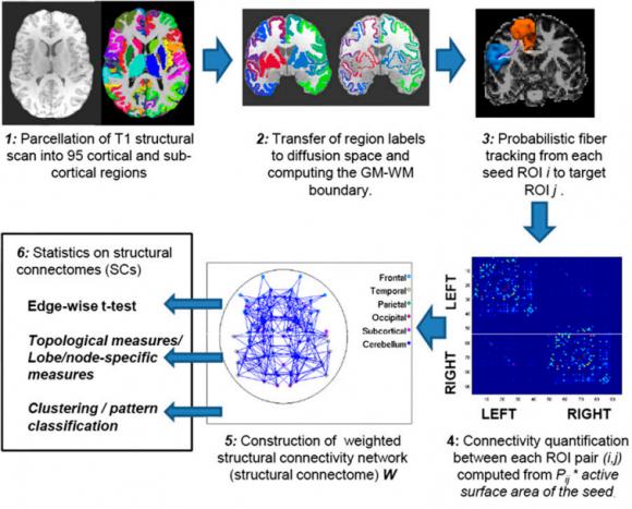 Cerebro del hombre y de la mujer cerebro la ciencia de la mula