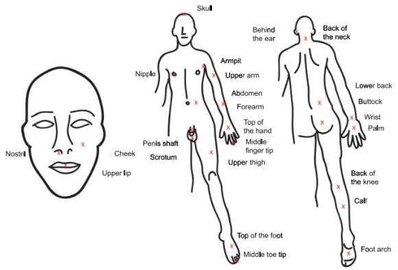 Dibujo20150922 1 Sting Locations - Drawing of the human form with Xs and labels at the sting locations - wiley