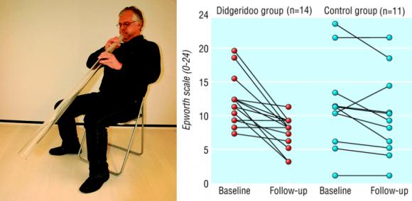 Dibujo20170918 man playing didgeridoo thebmj