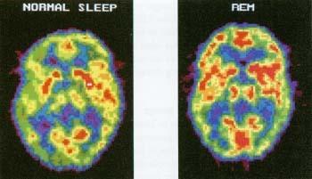 ¿Por qué tenemos que dormir? (o más sobre la teoría de Mr. DNA's, Sir Francis Crick)