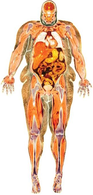 Todos los obesos llevamos a alguien delgado en nuestro interior ...
