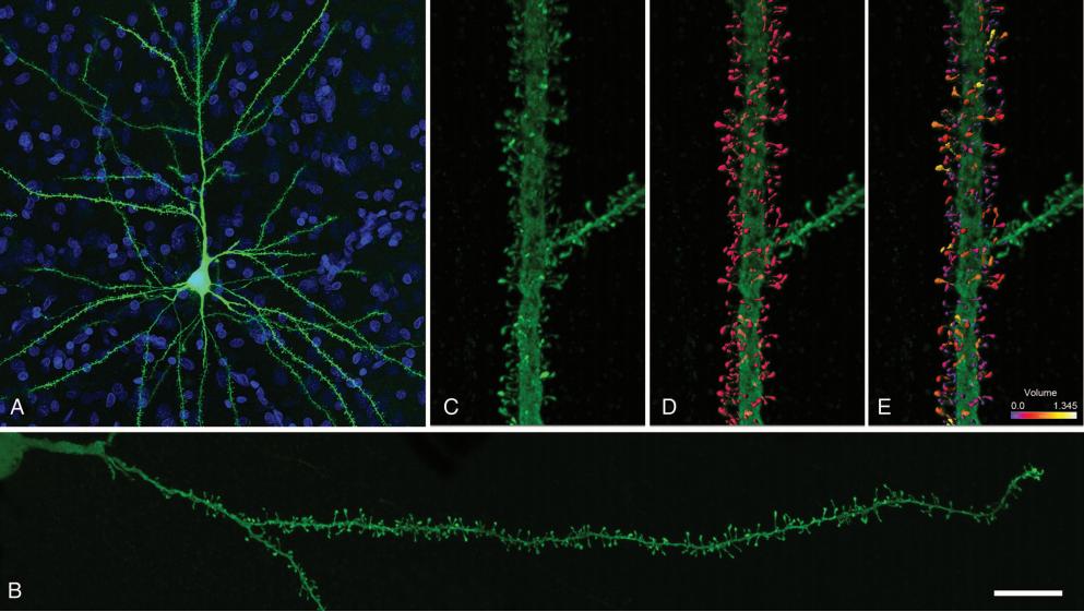 Dibujo20131121 conforcal microscopy image intracellular injected layer iii pyramidal neuron human cingulate conrtex