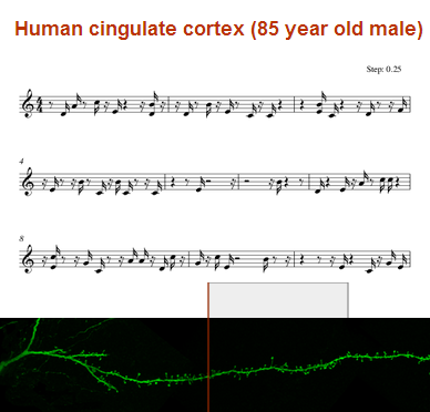 Dibujo20131121 music from human cingulate cortex - 85 year old male - neuroinformatics
