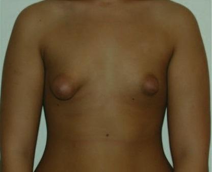 Dibujo20150110 Tuberous breast deformity -JASPS - LWW
