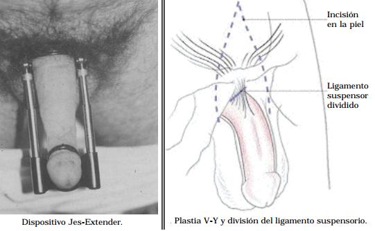 Dibujo20150116 jes extender vs plastia v-y