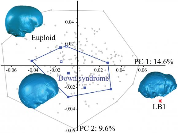 Dibjo20160704 euploid down syndrome lb1 cranium journal pone 0155731 g003
