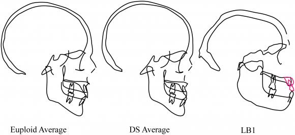 Dibujo20160704 Euploid down syndrome lb1 homo floresiensis journal pone 0155731 g004