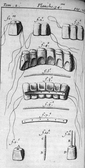 dibujo20161122-dental-appliances-depicted-by-fauchard-1746-wiley-clinical-implant-dentistry