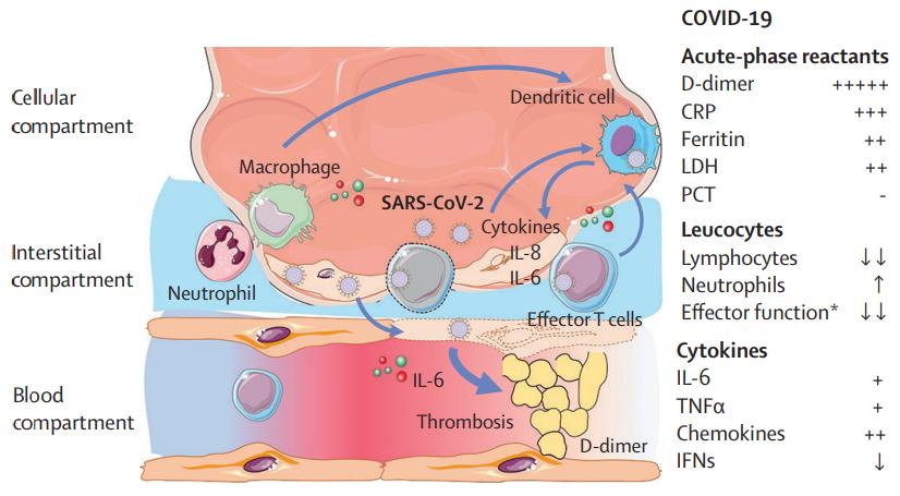 D20201019-thelancet-S2213-260028202930404-5-covid-19-cytokine-storm.png